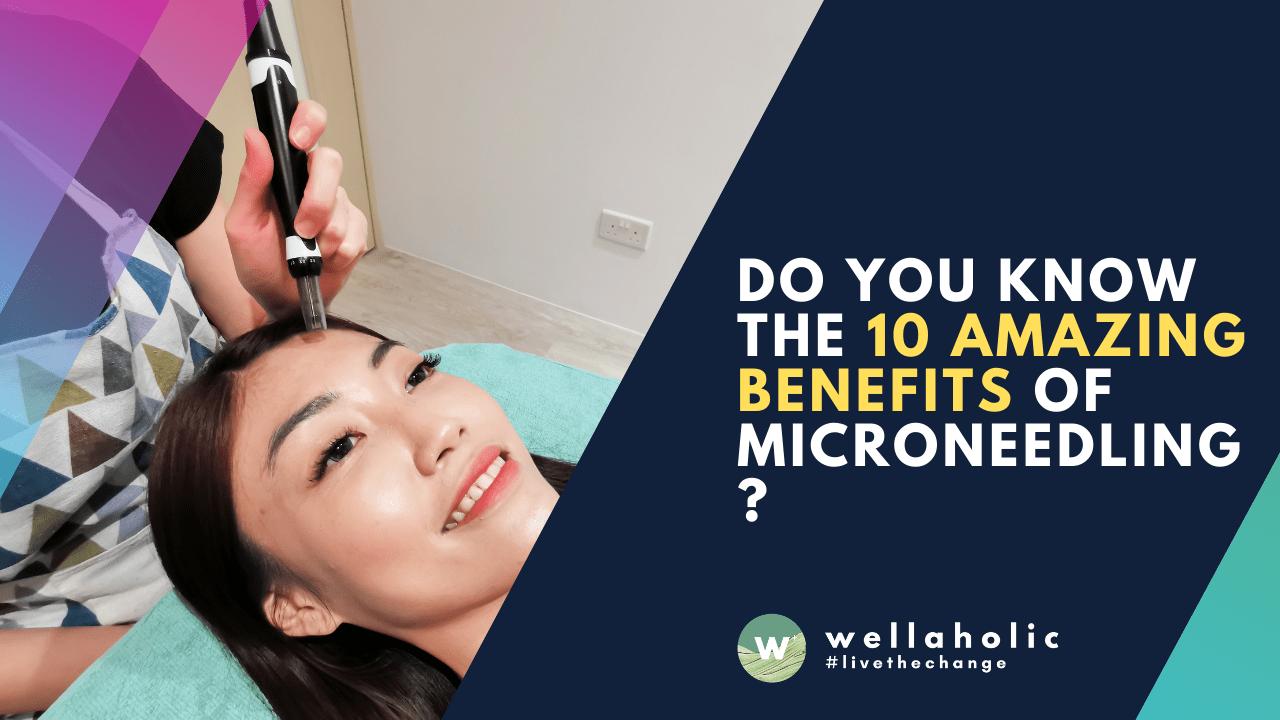 10 Amazing Benefits of Microneedling
