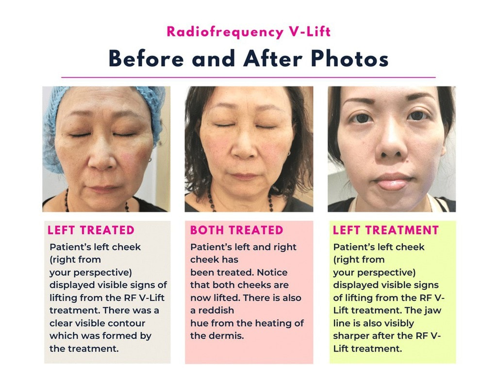Before and After RF Vlift
